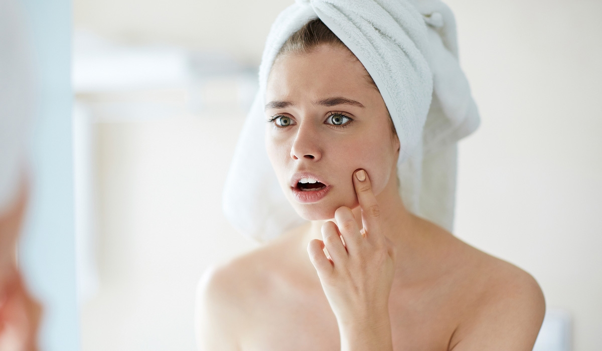 How to Care for Acne Skin in Summer? Characteristics, Cosmetics, & Care